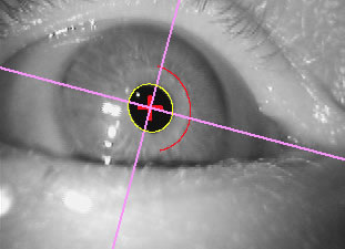 ocular torion measurement